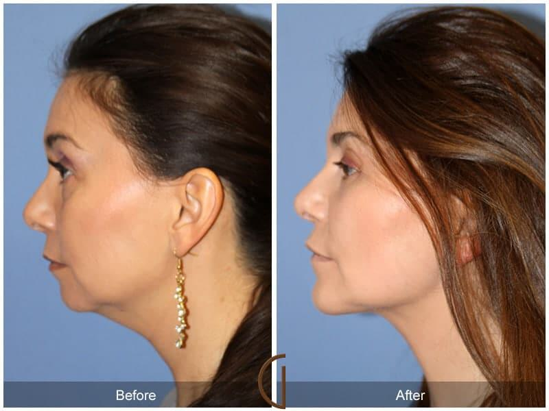 Chin Augmentation Before & After Photo