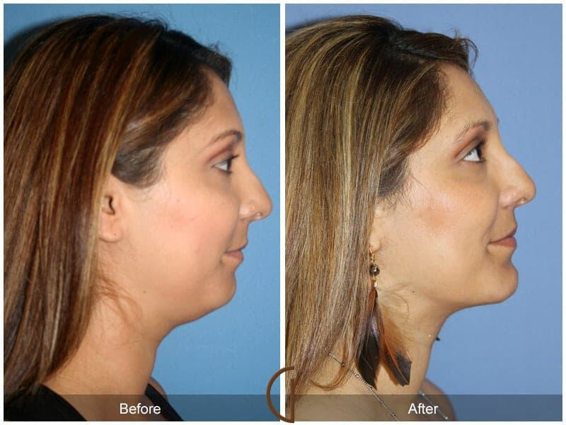 Chin Augmentation Before & After Image