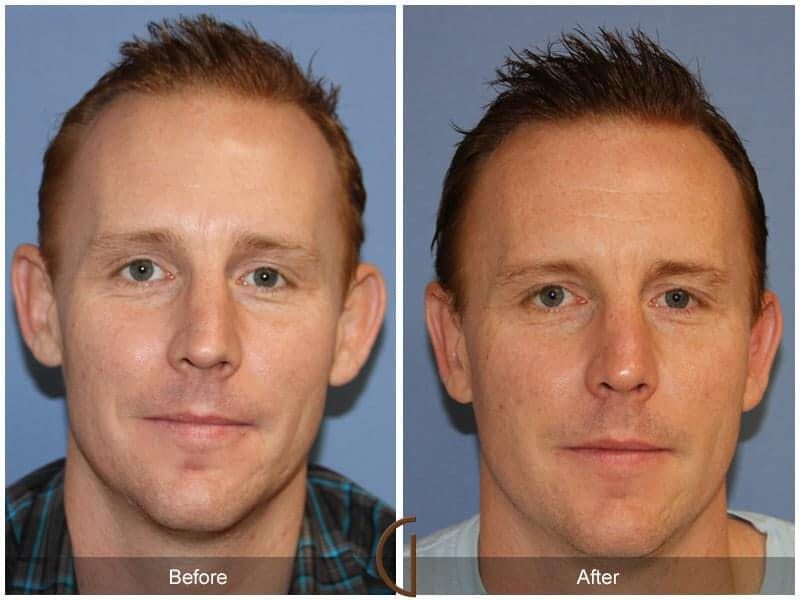Otoplasty Before & After Image