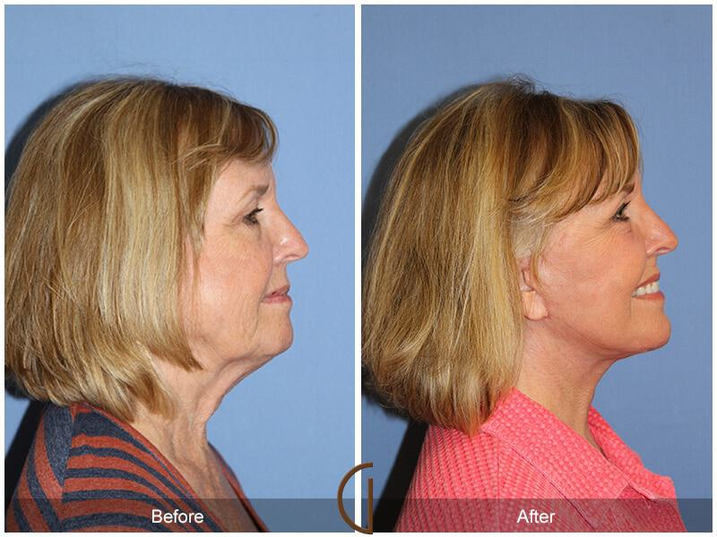 Eyelid Lift Before & After Image