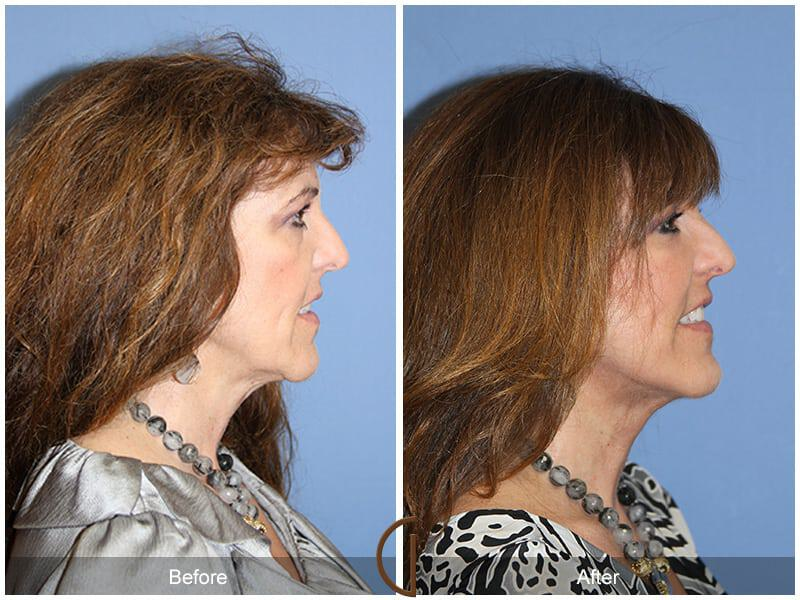 Facial Fat Grafting Before & After Photo