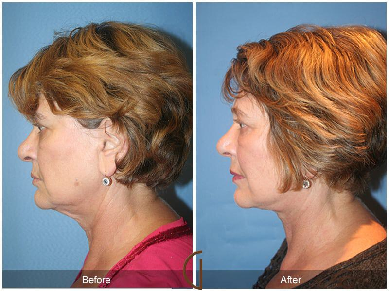 Facial Fat Grafting Before & After Image