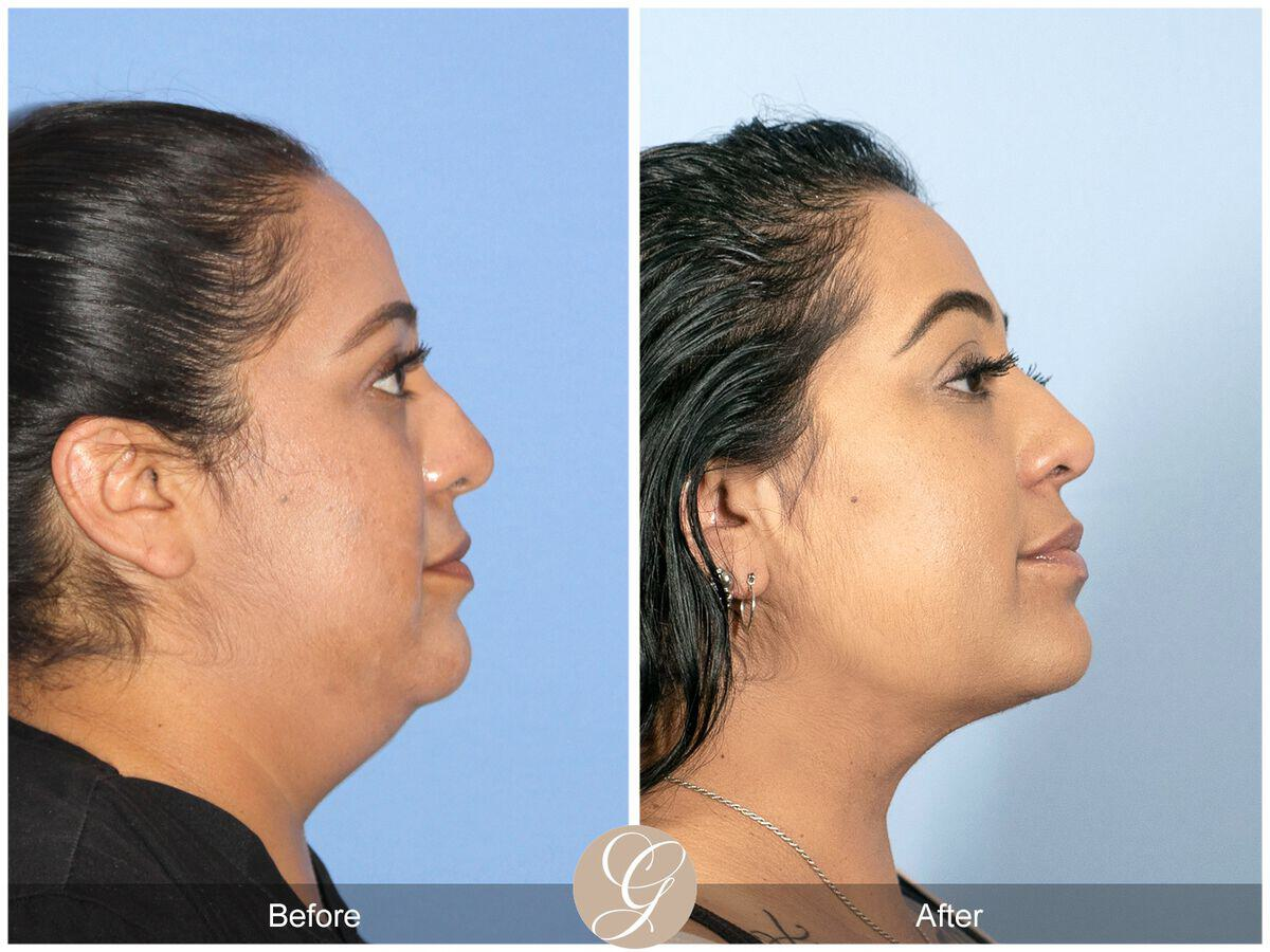 Neck Liposuction Before & After Image