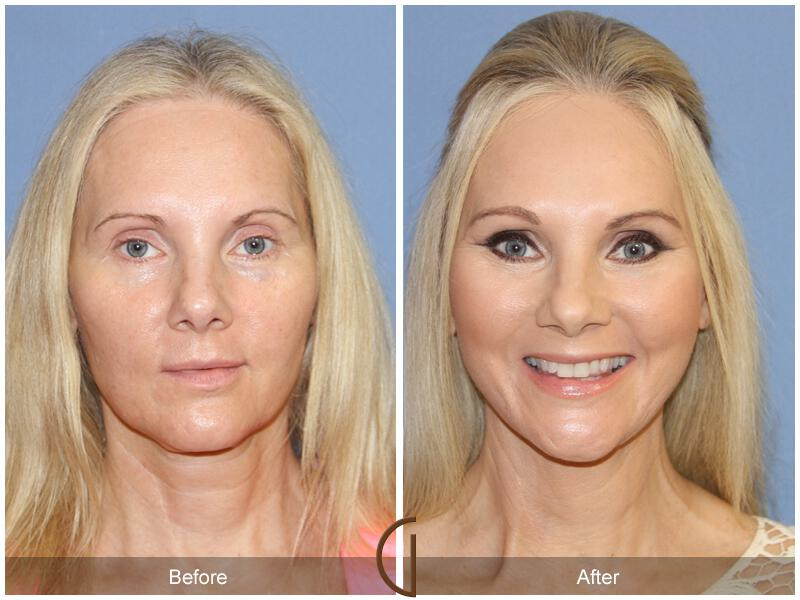 Facelift Forties Before & After Image