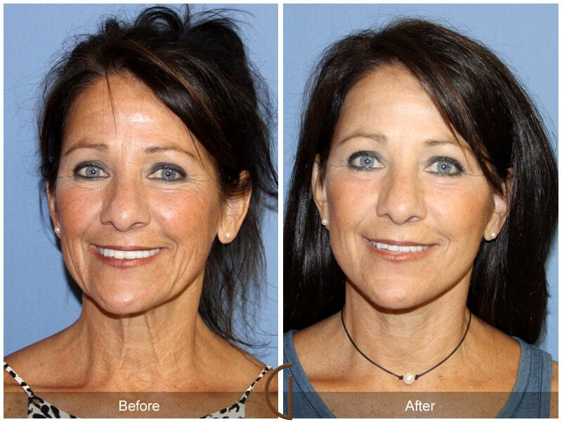 Facelift Fifties Before & After Photo