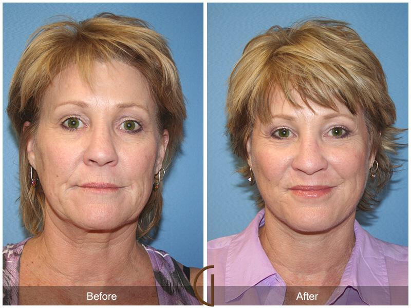Facelift Fifties Before & After Image