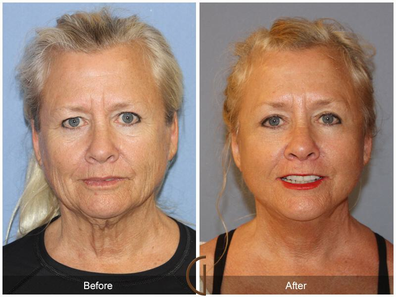 Facelift Sixties Before & After Image