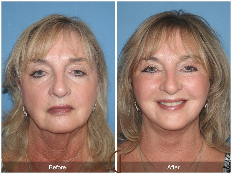 Facelift Sixties Before & After Photo