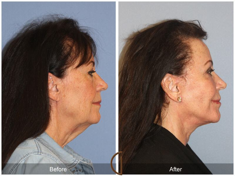 Facelift Seventies  Before & After Image