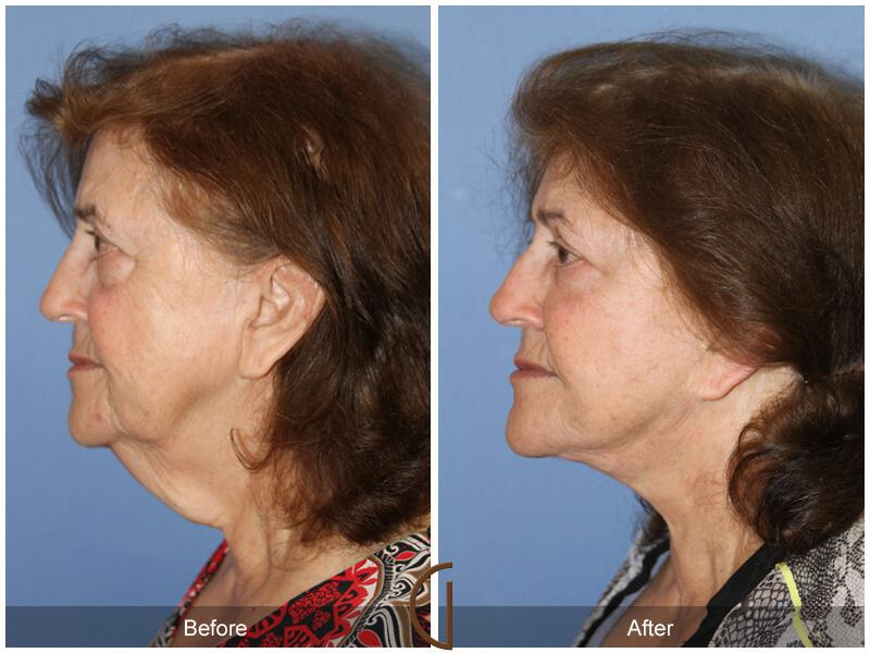 Facelift Seventies  Before & After Photo