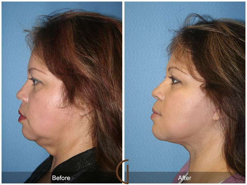 Facelift After Weight Loss Before & After Photo