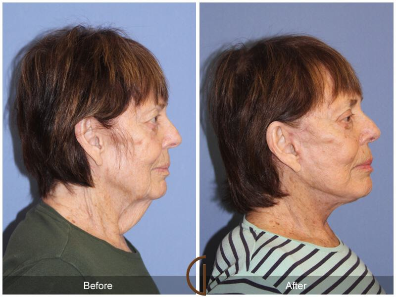 Facelift After Weight Loss Before & After Image