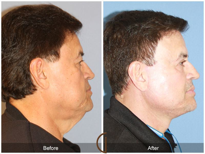 Facelift Male Before & After Photo