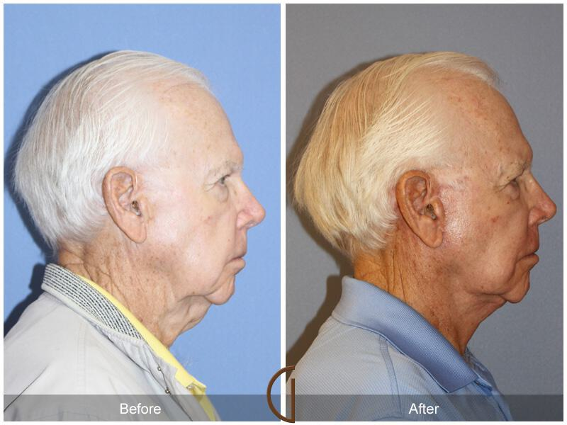 Facelift Male Before & After Image