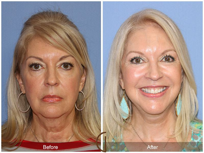 Facelift With Other Procedures Before & After Photo