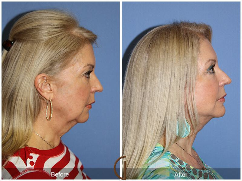 Facelift With Other Procedures Before & After Image