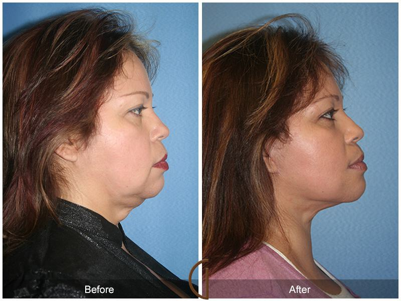 Neck Lift Before & After Photo