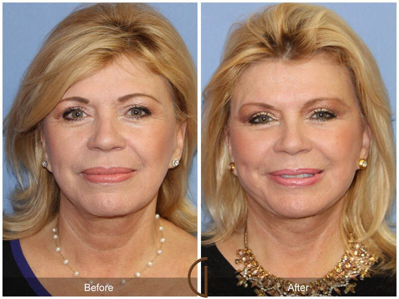Facelift Revision Before & After Image