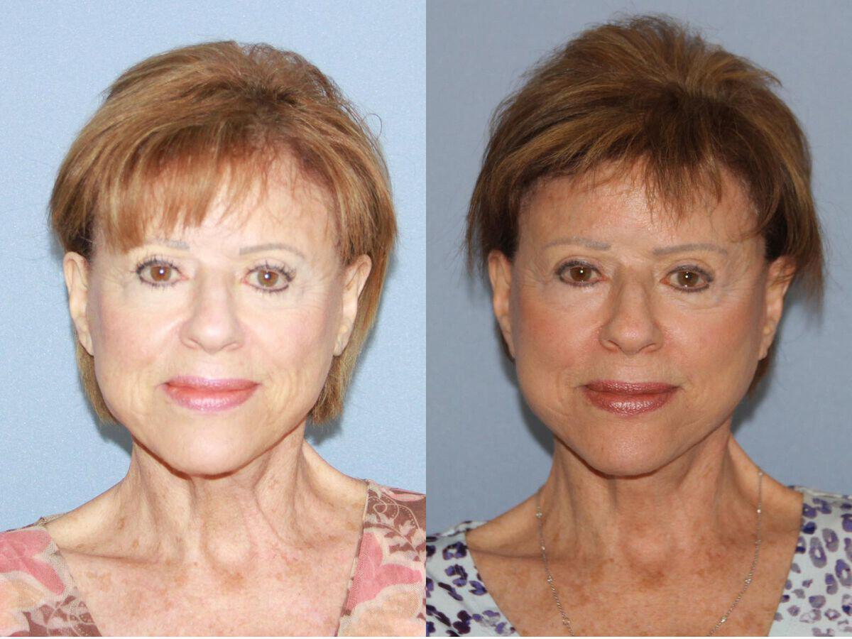 Facelift Revision Before & After Photo