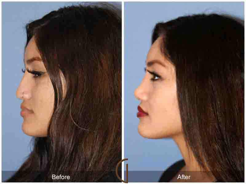 Ethnic Rhinoplasty Before & After Image
