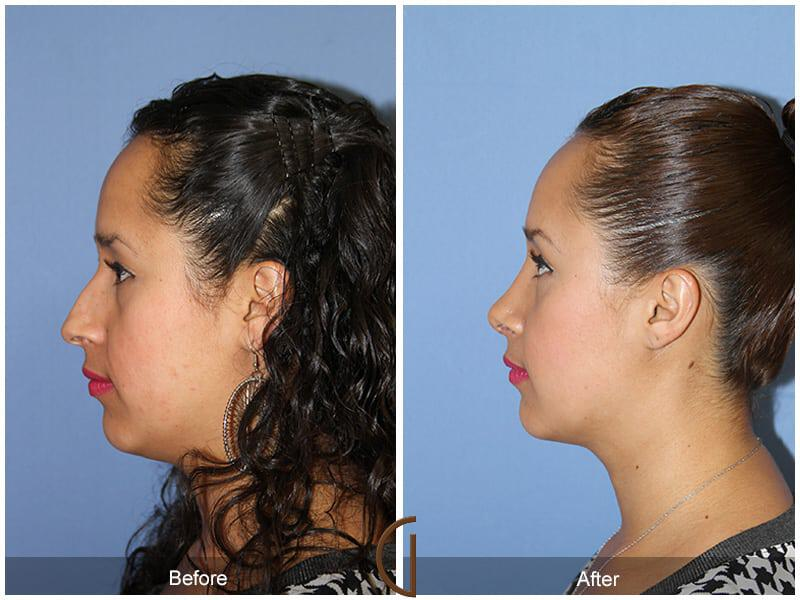 Ethnic Rhinoplasty Before & After Photo