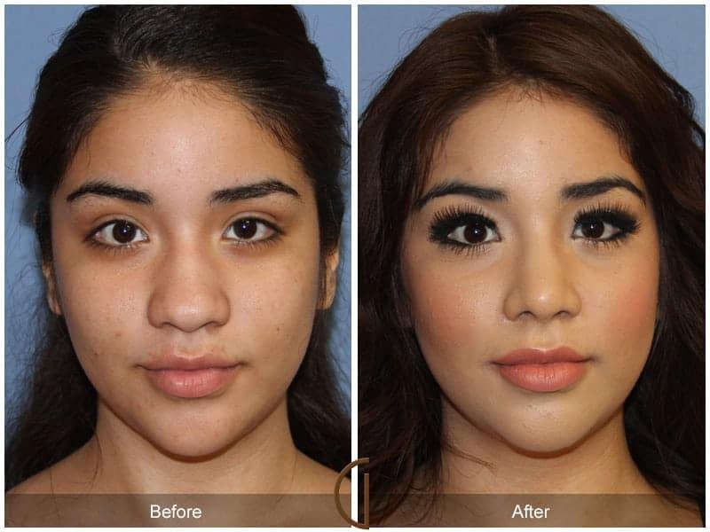 Ethnic Rhinoplasty Before and after photos Orange County