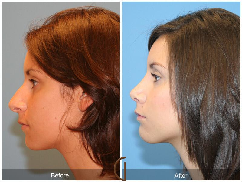 Female Rhinoplasty Before and After Photos Orange County