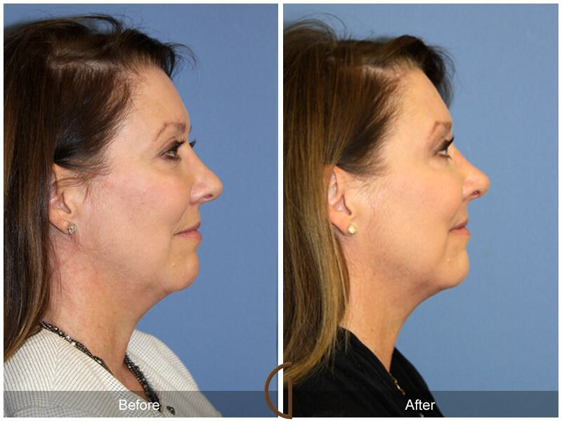 Female Rhinoplasty Before & After Photo