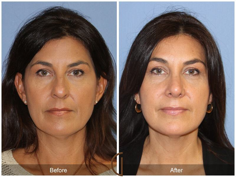 Female Rhinoplasty Before & After Image