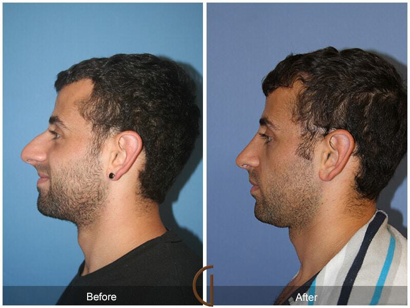 Male Rhinoplasty before and after photos Orange County