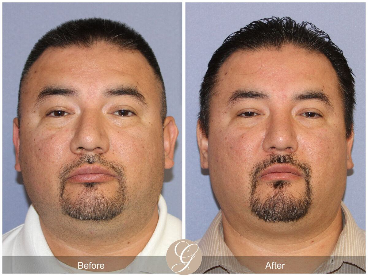 Male Rhinoplasty Before & After Photo