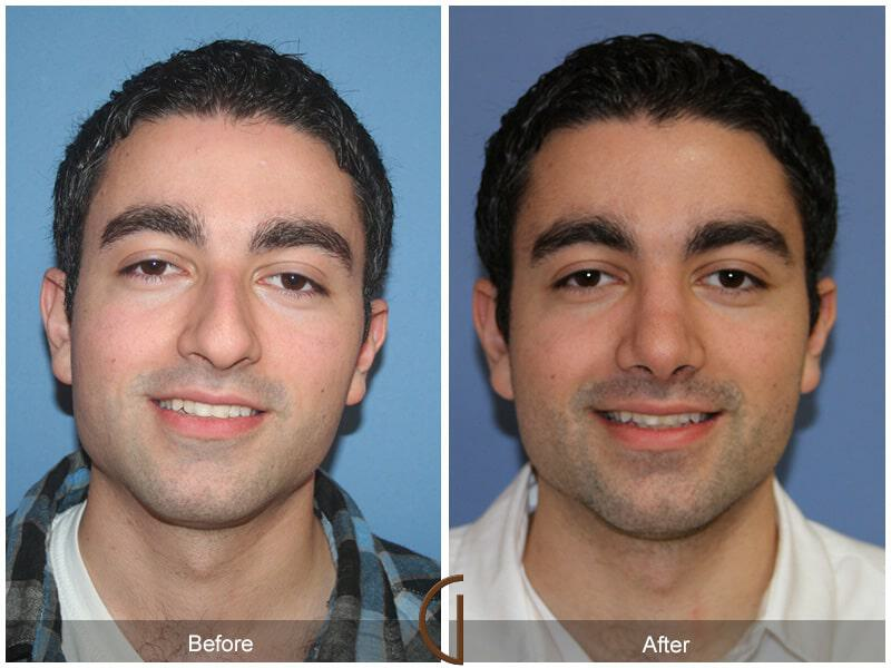 Male Rhinoplasty Before & After Image