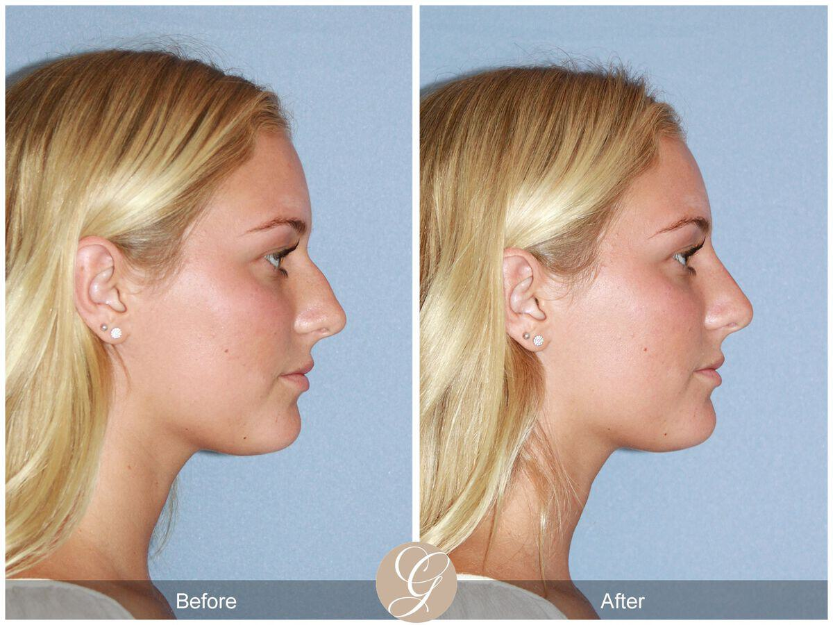 Non-surgical Rhinoplasty before and after photos Orange County