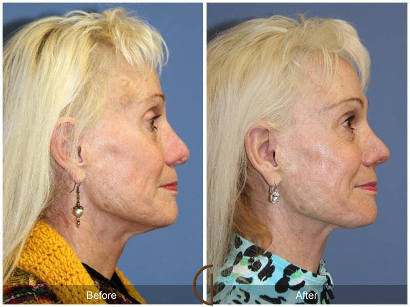 Revision Rhinoplasty Before & After Photo