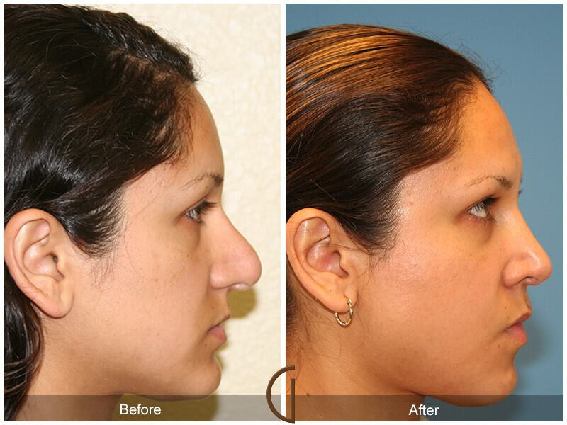 Revision Rhinoplasty Before & After Image