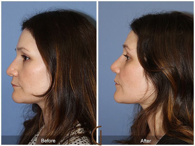 Revision Rhinoplasty Before and After Photos Orange County