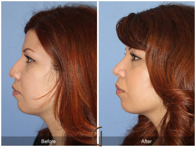Rhinoplasty Before & After Image