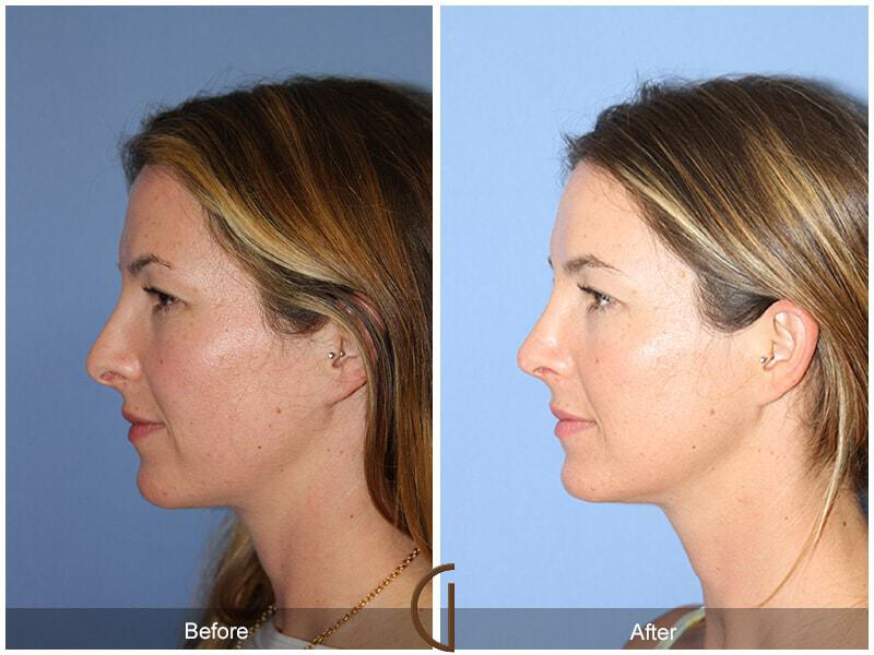 Tip Rhinoplasty before and after photos Orange County
