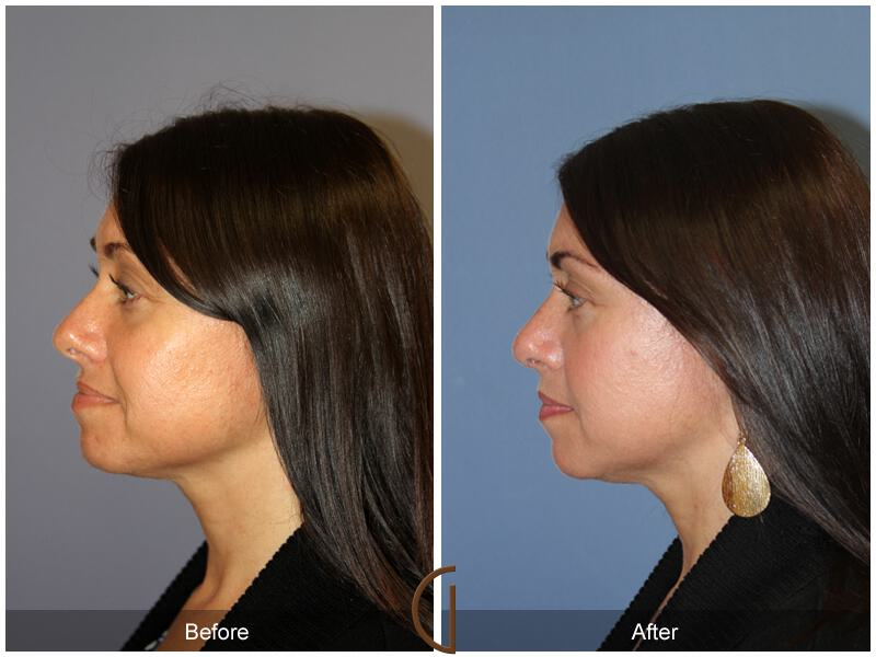 Tip Rhinoplasty Before & After Photo