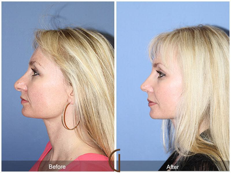Tip Rhinoplasty Before & After Image
